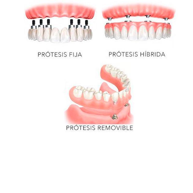 tipos de protesis sobre implantes