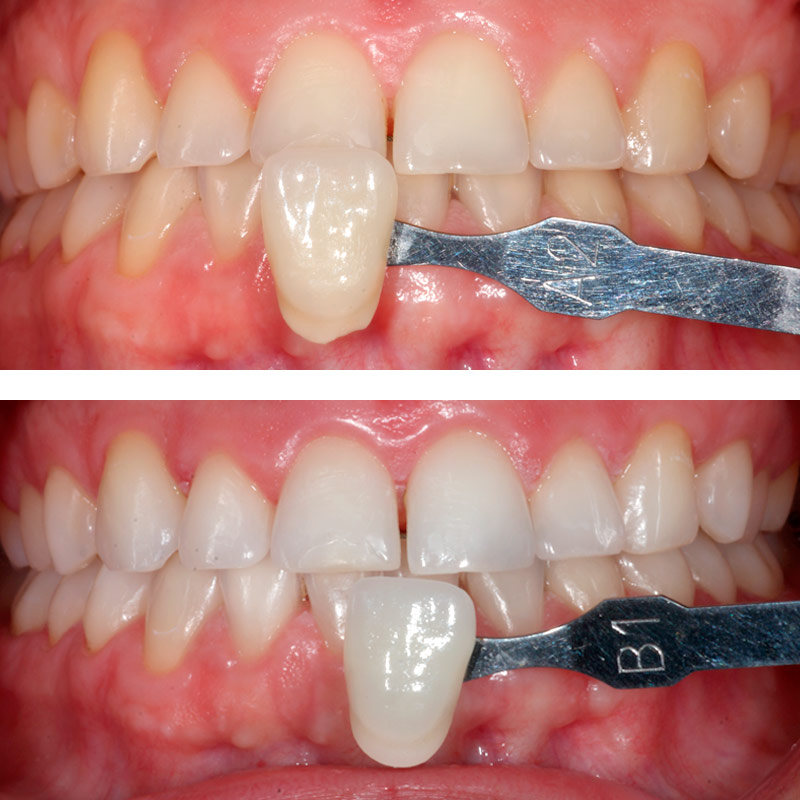 antes y despues del blanqueamiento dental