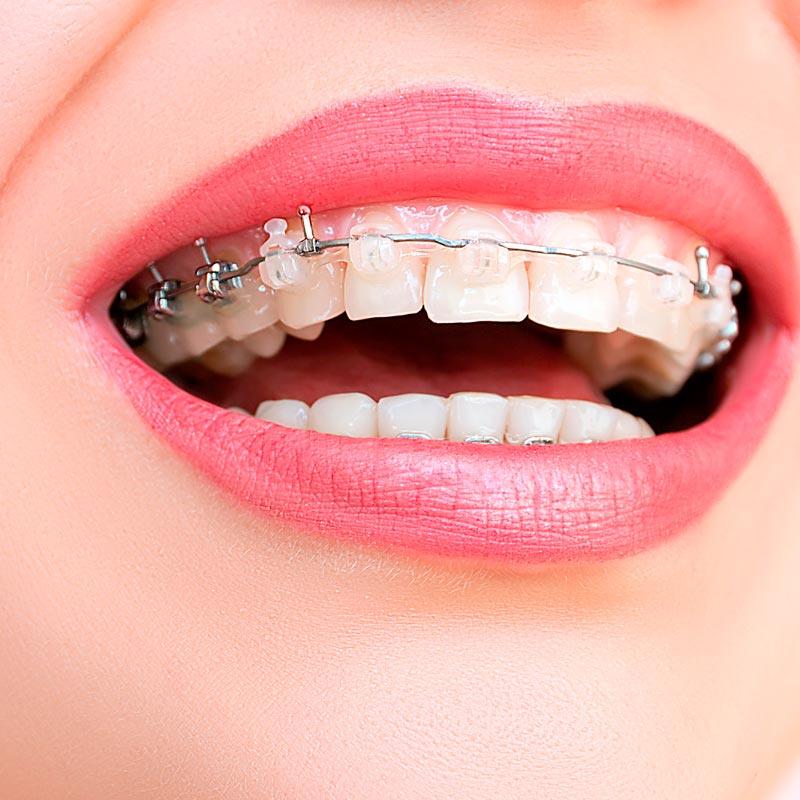 Brackets para ortodoncia en la clinica blanco ramos de santiago de compostela - Como alinear los dientes en casa sin brackets ...