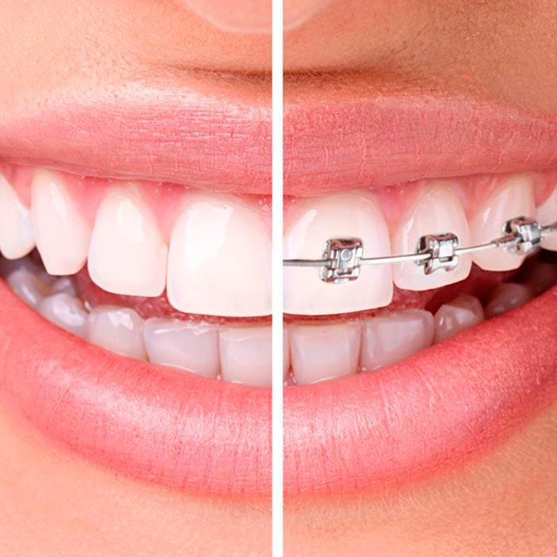 Ortodoncia Clinica Blanco Ramos