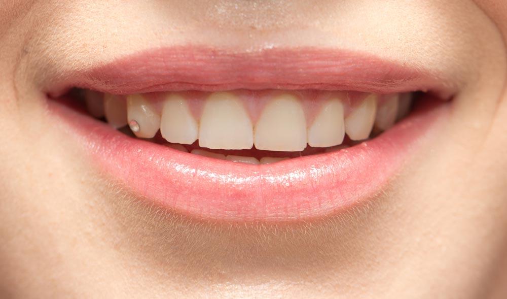 Clinica dental en Santiago de Compostela