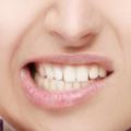 El covid dispara el bruxismo y la rotura de dientes