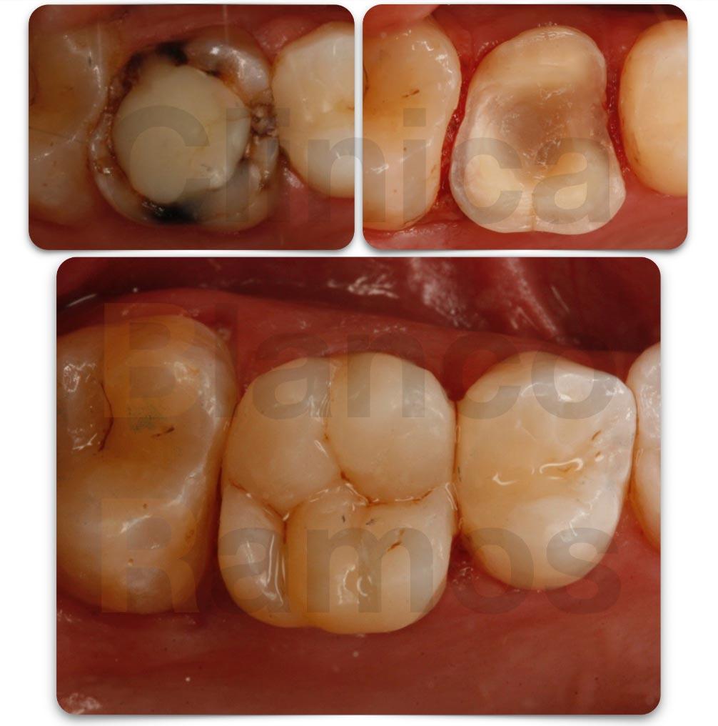 Incrustación dental