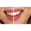 10 consejos a tener en cuenta antes de hacerse un blanqueamiento dental